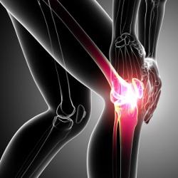 Knäproblem så som smärtor i knät